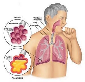 Pneumonia - FirstCare Walk-In Medical Center