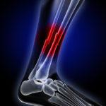 fracture, broken bone, x-ray