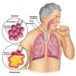 Pneumonia in rosendale and highland