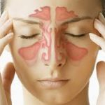 Sinus infection and dental pain