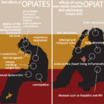 Opiate Addiction and Suboxone treatment at FirstCare Medical Center