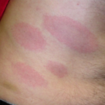 Lyme Disease Tick Bites