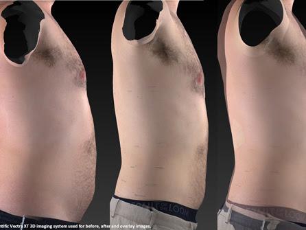 Ultraslim 174 Fat Reduction System Firstcare Walk In